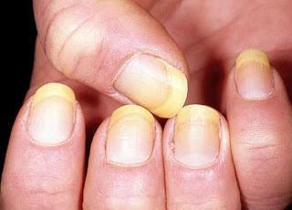 c6f5fc32e16e0c886ad4ab9324d232eb - Tips για υγιή νύχια χωρίς κιτρινίλες