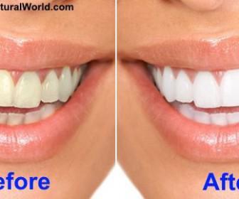 5 technikes gia na lefkanete ta dontia sas sto spiti1 336x280 - 5 Τεχνικές για να λευκάνετε τα δόντια σας στο σπίτι